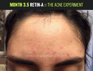 Month 3.5 on Retin-A :: The Acne Experiment