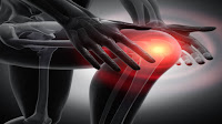 أعراض لالتهاب المفاصل في الركبة
