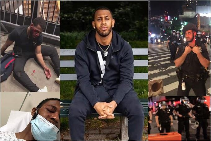 VIDEO: Manifestante dominicano en protestas por Floyd demandará al NYPD por brutal golpiza de policías que fracturaron su cara