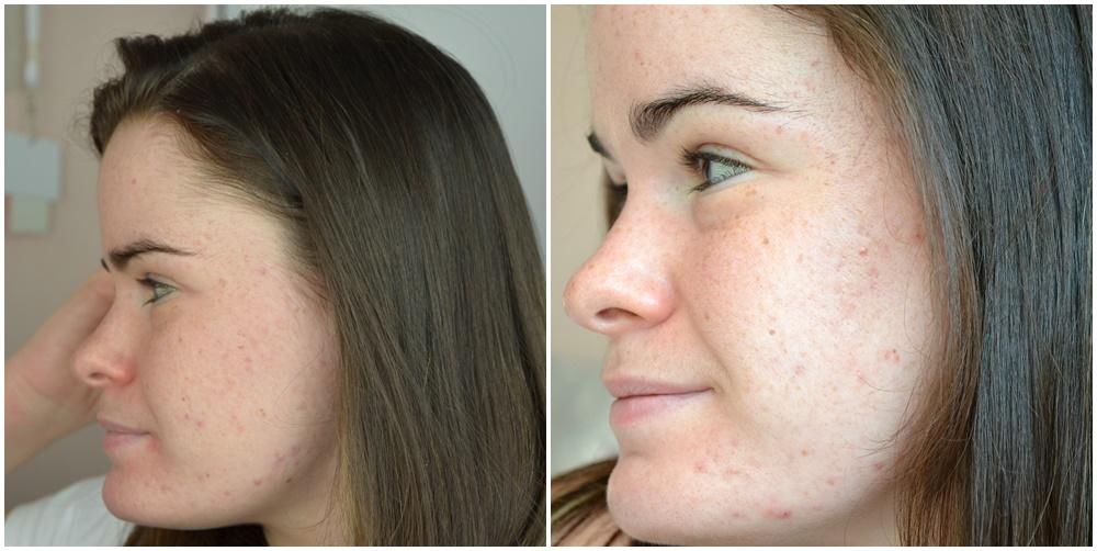 comparaison joue guache quatrièeme et cinquième mois de traitement contre l'acné