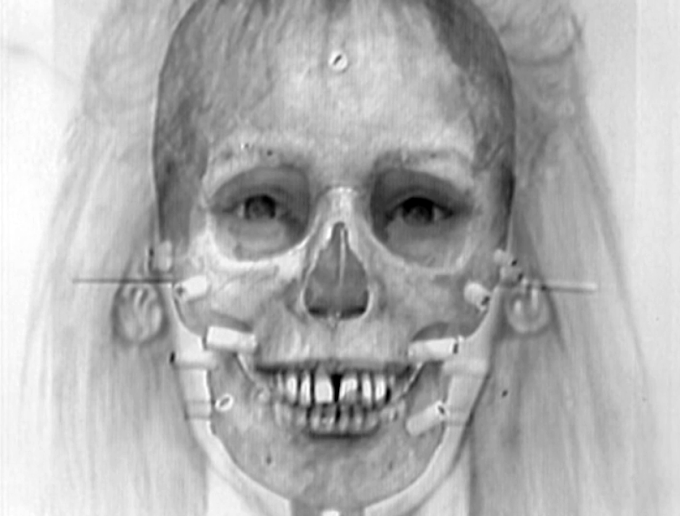 What is Skull superimposition?