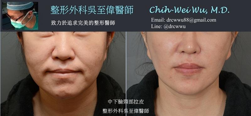 2020年6月最新拉皮手術案例:中下臉筋膜拉皮+頸紋拉皮+全臉補脂。此案例為削骨後下垂,在他院拉皮手術後仍有明顯法令紋與嘴邊肉,經吳醫師拉皮手術後,可以見到法令紋與嘴邊肉改善明顯,下巴輪廓線的線條緊實許多,整體變得非常年輕。