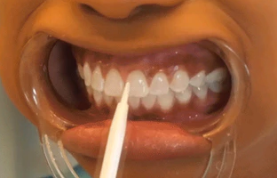 how to make teeth whiter in 3 minutes
