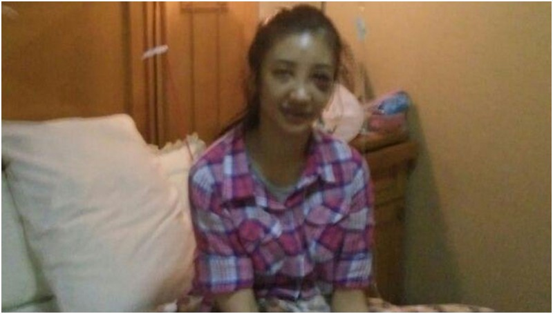 Saori Ishii dirawat di RS Tria Dipa