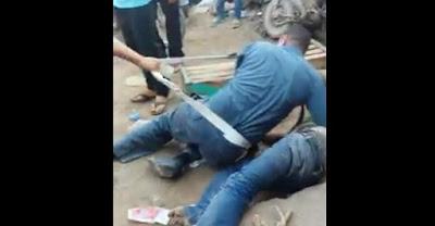 التعذيب يورط دركيين..تسببوا في غيبوبة لشاب بعد الاعتداء عليه بإيعاز من نافذ