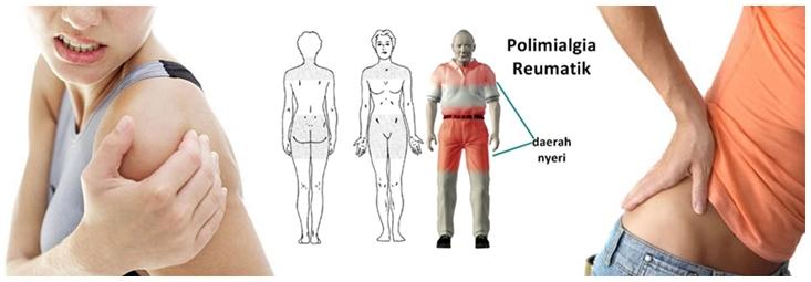 Cara Mengatasi Polimialgia Reumatik
