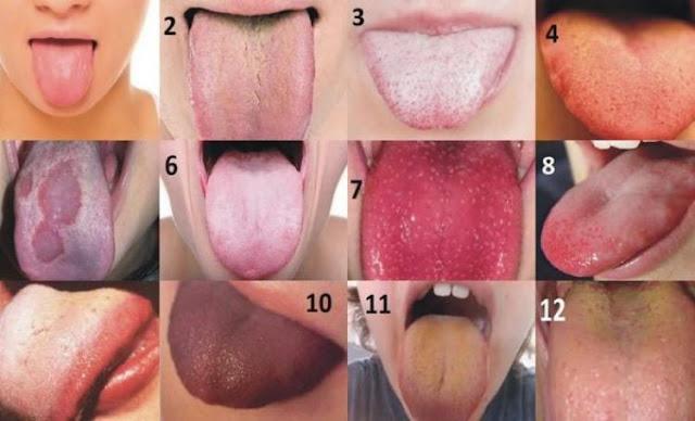 Jezik signalizira bolesno srce, jetru ili žuč
