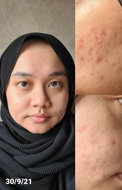Medicube Red Serum Review Results