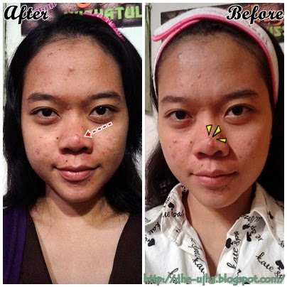 before dan after menggunakan acnes sealing gel