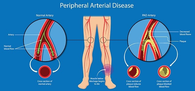 what causes peripheral artery disease