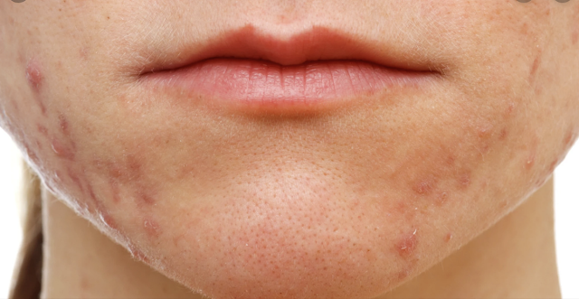 Things You Should Not Put On Your Face to Avoid Pimples, Eczema, Dry, Itchy And Other Skin Problems