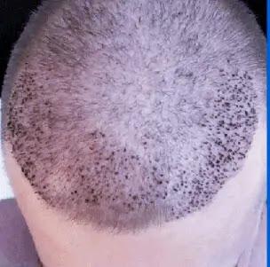 زراعة الشعر | أحدث التقنيات المستخدمة ونسب النجاح
