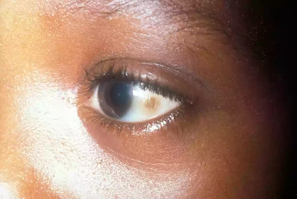 brown spots on eyes white part