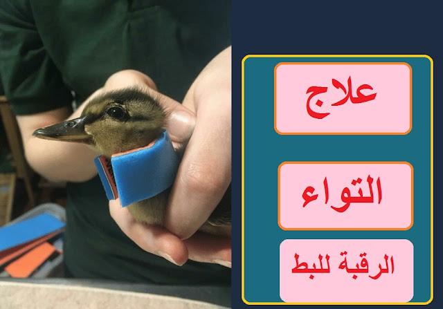 """""""امراض البط""""علاج التواء الرقبة في البط"""" مرض النيوكاسل في البط"""" كيفية علاج البط """" امراض البط"""" فيروس النيوكاسل واعراضة"""""""