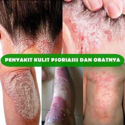 Cara Alami Untuk Mengatasi Penyakit Kulit Psoriasis