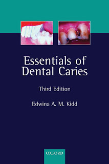 Essentials of Dental Caries 3rd Edition