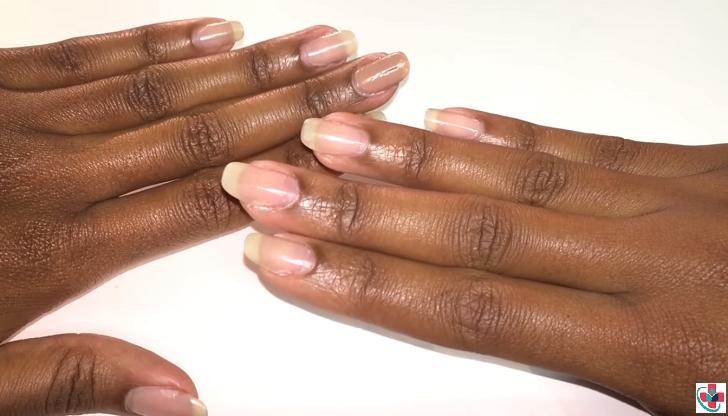 Shiny and healthy nails