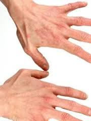 Cara Untuk Mengobati Eksim Di jari Kaki Dan Tangan
