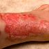 Cara merawat luka terbakar dan melecur yang betul