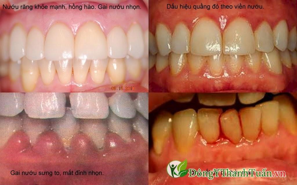 Hôi miệng xuất phát từ các bệnh liên quan đến răng miệng