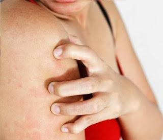 remède démangeaisons peau