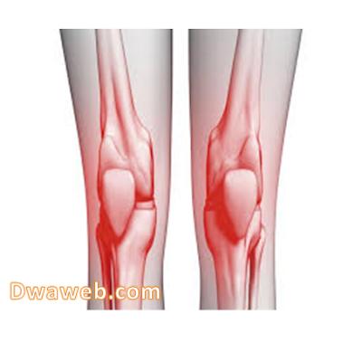 أسباب  وعلاج مرض خشونة الركبة