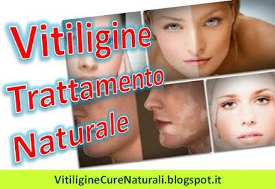 come-trattare-la-vitiligine-in-modo-naturale-trattamento-rimedi-naturali-casalinghi