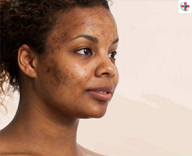 Natural ways to clear your acne
