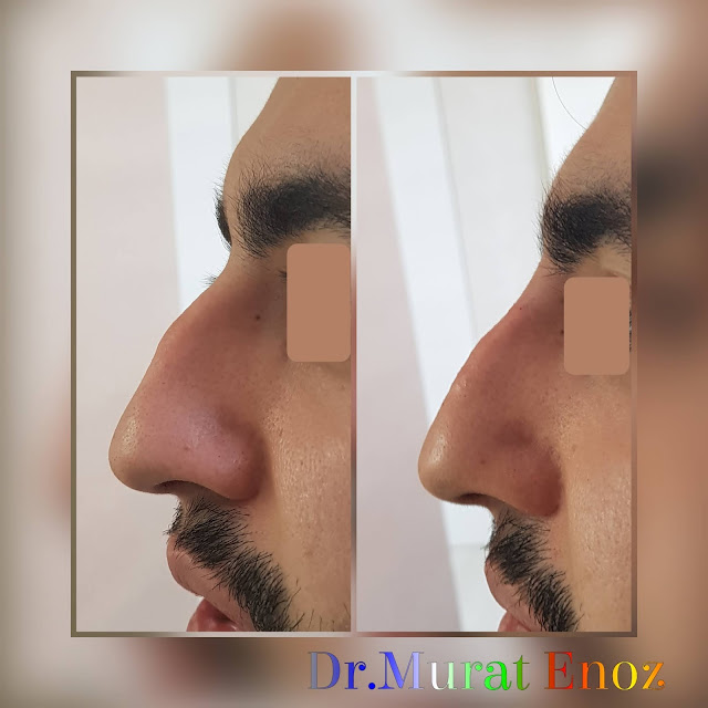 Non surgical nose job with filler, limited filler injection to the nose