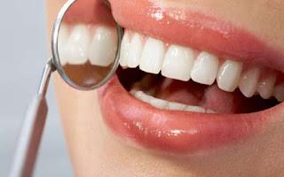 ¿Necesita una endodoncia?