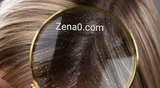 أفضل وصفة طبيعية لعلاج قشرة الشعر