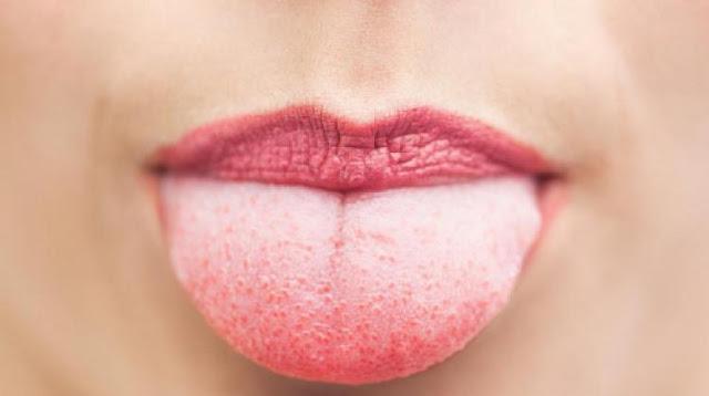 Kako prepoznati opasne bolesti prema vrsti jezika