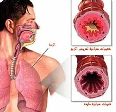 حساسية الصدر عند الاطفال والفرق بينها وبين كورونا