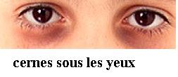 réduire les cernes sous les yeux