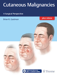 Cutaneous Malignancies A Surgical Perspective
