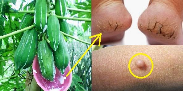 Pesan Dari Dokter!! Tumit Pecah-Pecah dan Kutil Akan Hilang Dalam 2 Hari Saja Dengan Getah Pepaya. Begini Caranya, Yang Punya Penyakit Kulit Wajib Di Coba!