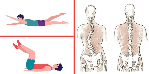 6 Stretches That Can Help Heal Scoliosis