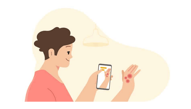 Google's artificial intelligence can identify common skin diseases