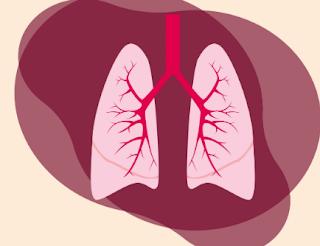 Jenis-Jenis Pneumonia Yang Perlu Diketahui