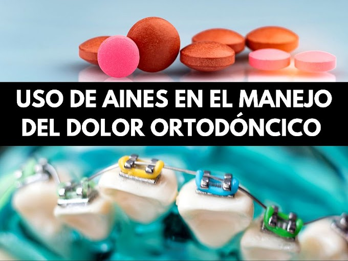 PDF: Uso de AINES en el manejo del dolor ortodóncico