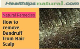 remove dandruff