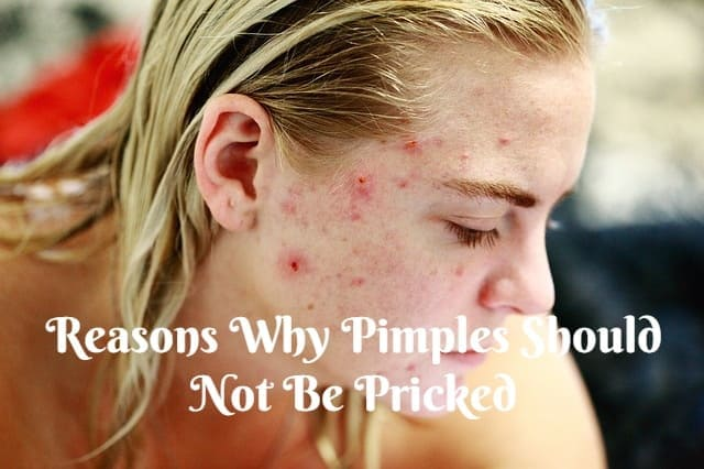 Reasons Why Pimples Should Not Be Pricked – Pricking Pimples