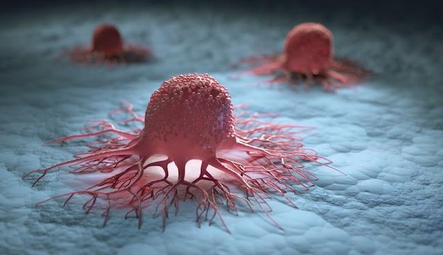 Veja os 12 sintomas que podem indicar que você está com câncer.