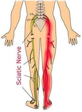 treatment for sciatica