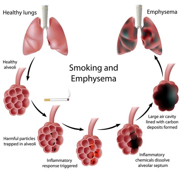 After Quitting Smoking How to Clean Lungs to Achieve Perfect Health