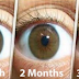 Improve Eyesight And Treat Catract Within 3 Months; No Surgery Needed