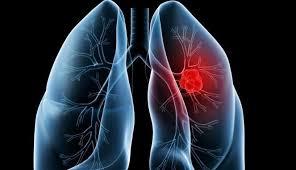 Penyebab Utama Kanker Paru Paru yang Harus Kita Hindari