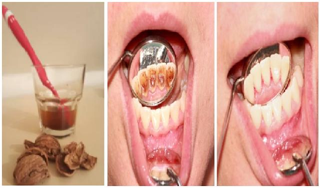 Kalau Tahu Semudah Ini Gak Perlu Lagi Ke Dokter Gigi Untuk