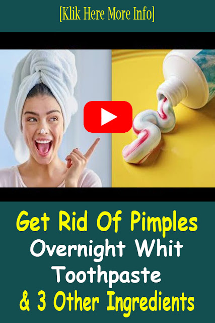 How To Get Rid Of Pimples Overnight With Toothpaste