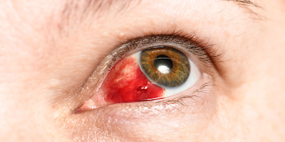 subconjunctival bleeding treatment at home